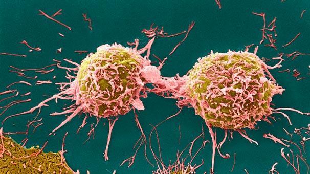 Yılın buluşu! Kanserde yayılmayı durduruyor...
